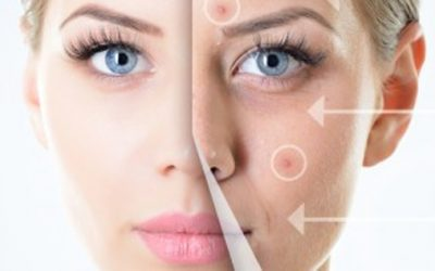 Micro-Needling Treatment in Hollywood