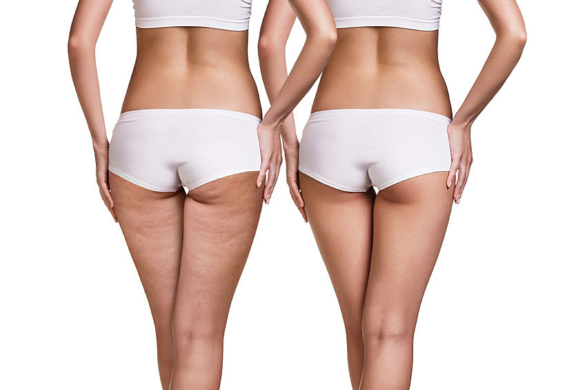 Body Slimming and Cellulite
