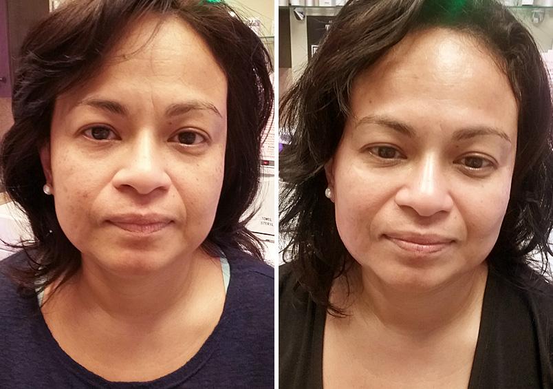 41 Facials, Skin & Body Treatments in Hollywood & Hallandale