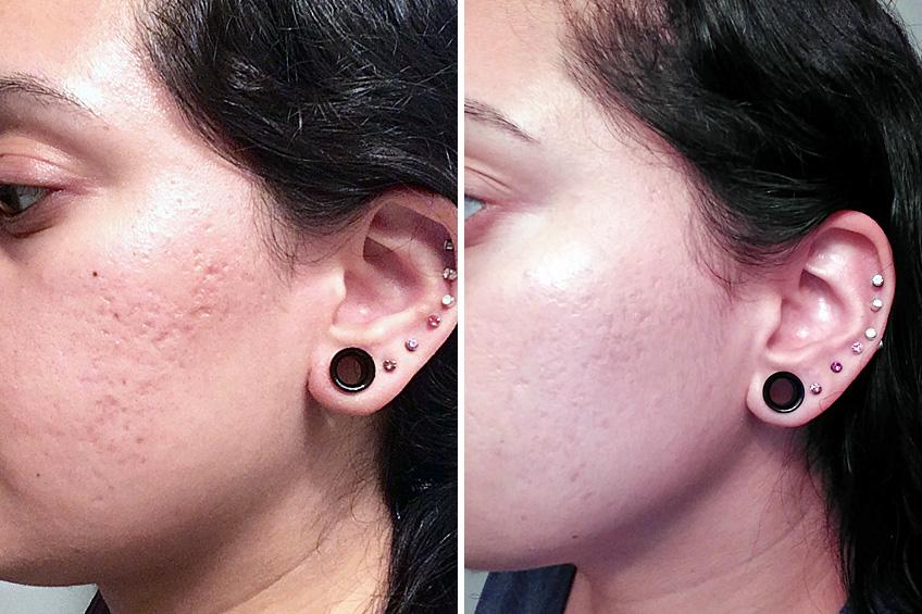 42 2 Facials, Skin & Body Treatments in Hollywood & Hallandale