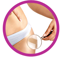 Stretch Mark Reduction Treatment