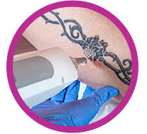 Laser Tattoo Removal - Large Tattoo